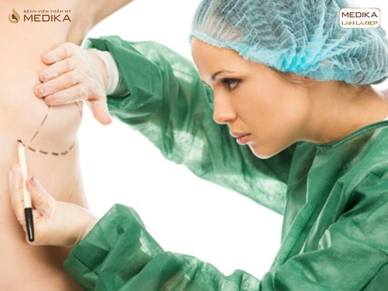 Phẫu thuật nâng ngực chảy xệ giá bao nhiêu là hợp lý? - Tại nangngucxe.vn