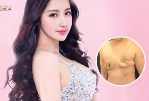 Phẫu thuật chỉnh sửa ngực hỏng biến hóa thành ngực đẹp - nangngucxe.vn