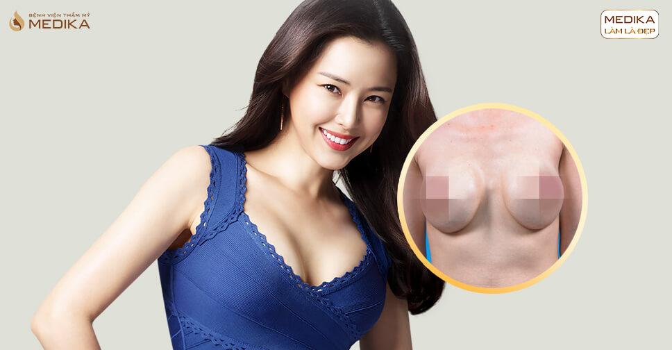 Phẫu thuật ngực hỏng - Công nghệ tiên tiến bệnh viện thẩm mỹ MEDIKA - nangngucxe.vn