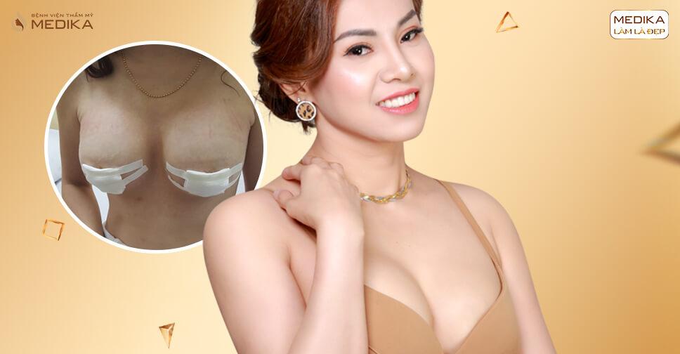 Phẫu thuật ngực hỏng - Nổi đau của chị em - nangngucxe.vn
