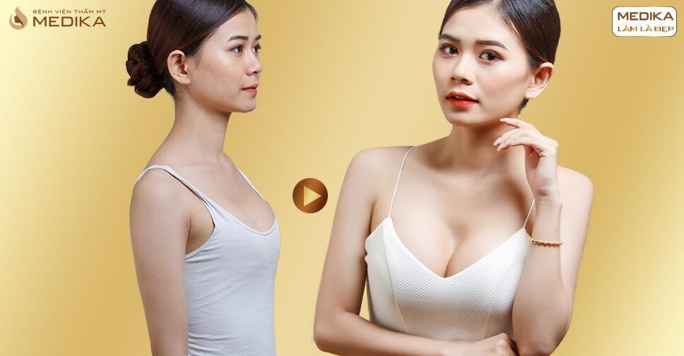 Phẫu thuật nâng ngực an toàn ở đâu bạn đã biết? - nangngucxe.vn