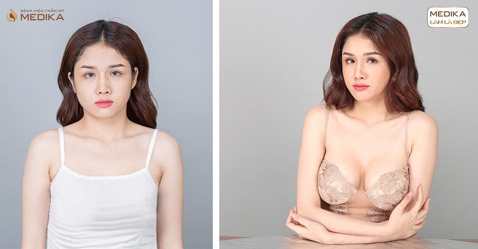 Nâng ngực - Phương pháp cải thiện vòng 1 siêu đẹp cho chị em - MEDIKA.vn