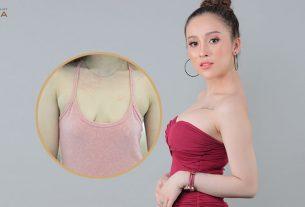 Nâng ngực xệ - Phương pháp cứu cánh chị em khỏi tự ti - Nangngucxe.vn