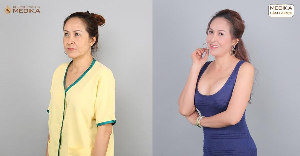 Nâng vòng 1 chảy xệ với giá tốt nhất tại Bệnh viện thẩm mỹ MEDIKA - Nangngucxe.vn