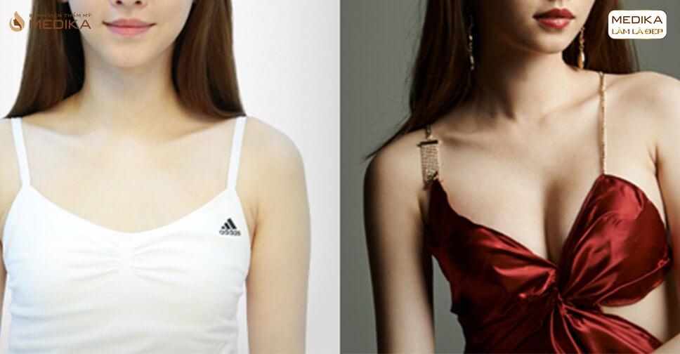 Các yếu tố nâng ngực đẹp - Nangngucxe.vn