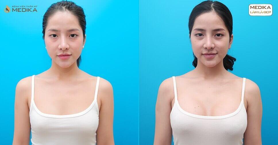 Nâng ngực an toàn sự lựa chọn hết sức kỹ càng khi quyết định - Nangngucxe.vn