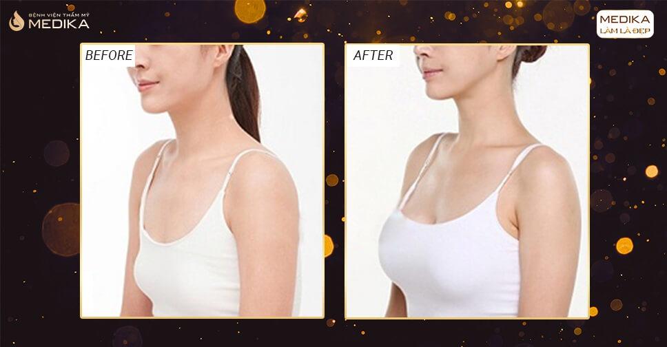 Nâng ngực chảy xệ cứu cánh phụ nữ U50 - Nangngucxe.vn