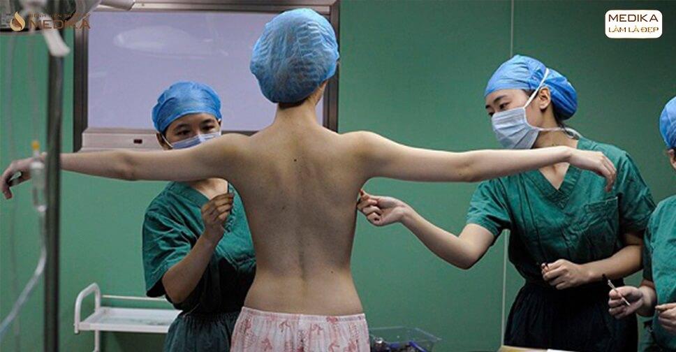 Phẫu thuật nâng vòng 1 nội soi liệu có đau đớn sau khi thực hiện - Nangngucxe.vn