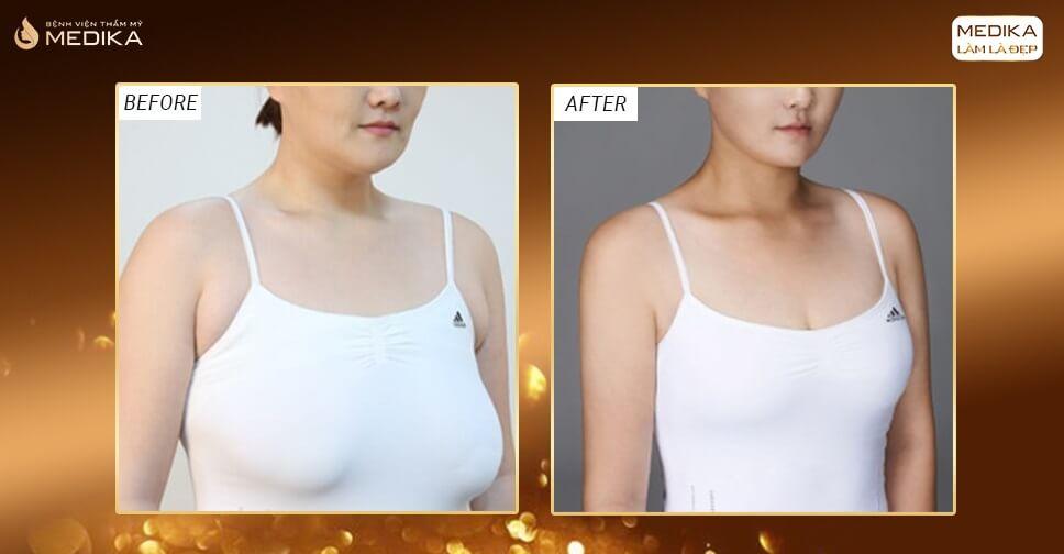 Chồng yêu chiều hơn sau khi nâng ngực chảy xệ - Nangngucxe.vn