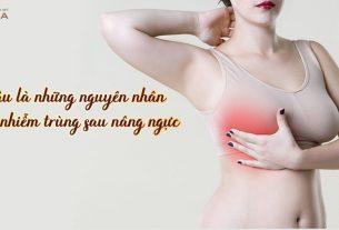 Đâu là những nguyên nhân gây nhiễm trùng sau nâng ngực - Nangngucxe.vn