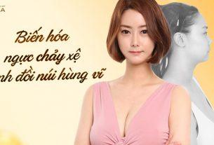 Nâng ngực chảy xệ - Biến hóa cặp ngực hoàn hảo - Nangngucxe.vn