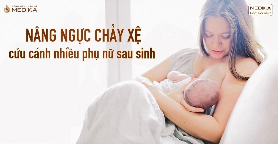 Nâng ngực chảy xệ cứu tinh bầu ngực cho nhiều chị em - Nangngucxe.vn