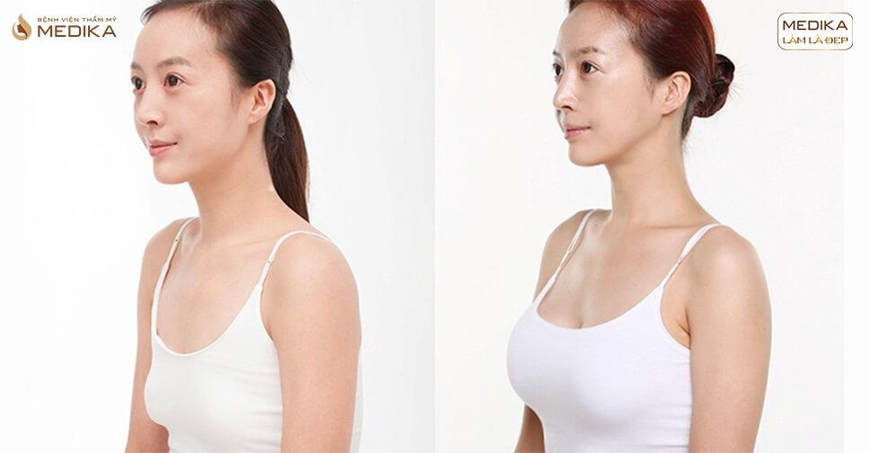 Nâng ngực chảy xệ dành riêng cho bà mẹ bỉm sữa và phụ nữ lớn tuổi - Nangngucxe.vn