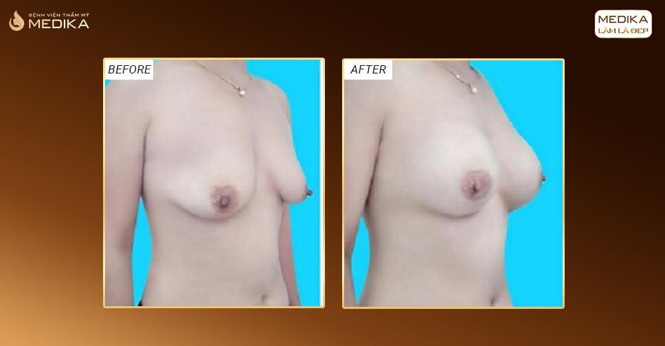 Nâng ngực chảy xệ giải quyết cho những bầu ngực xệ nặng nề - Nangngucxe.vn