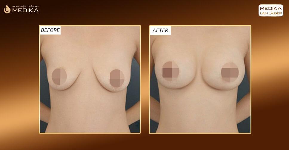 Nâng ngực chảy xệ giúp biến hóa bộ ngực hoàn hảo - Nangngucxe.vn