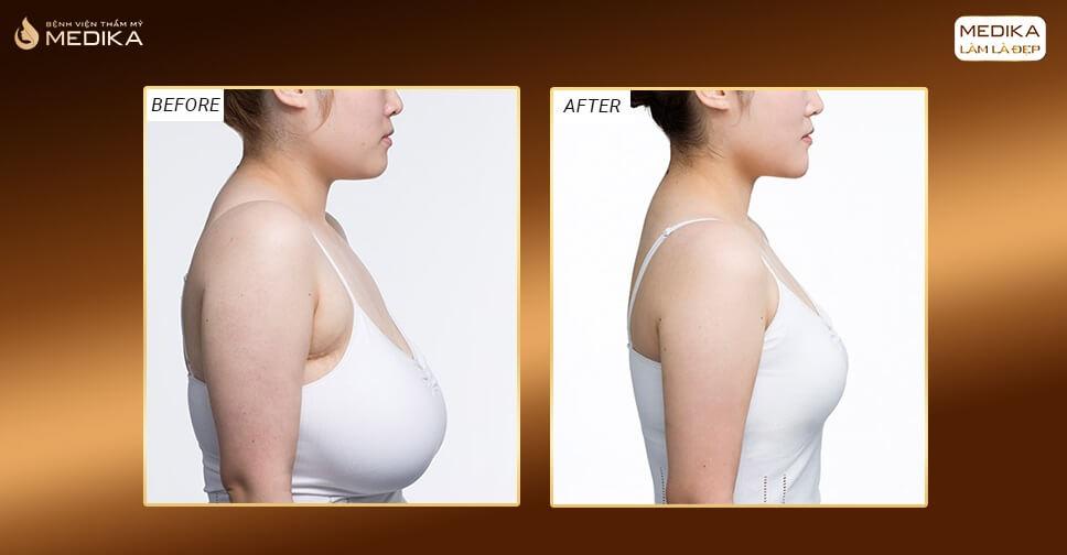 Nâng ngực chảy xệ mang lại vẻ đẹp cho những bà mẹ bỉm sữa - Nangngucxe.vn