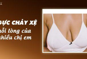 Nâng ngực chảy xệ - Phương pháp cải tạo bầu ngực lão hóa - Nangngucxe.vn