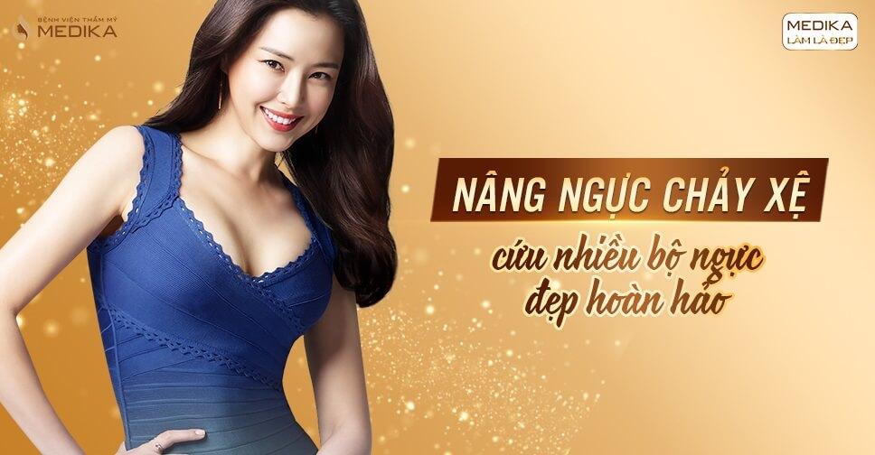 Nâng ngực chảy xệ - Phương pháp cứu cánh chị em bỉm sữa - Nangngucxe.vn