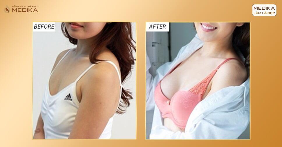 Nâng ngực chảy xệ phương pháp cứu tinh chị em phụ nữ lớn tuổi - Nangngucxe.vn