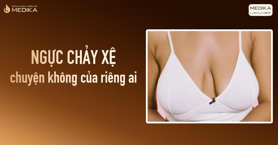 Nâng ngực xệ cứu cánh nhiều bà mẹ bỉm sữa - Nangngucxe.vn