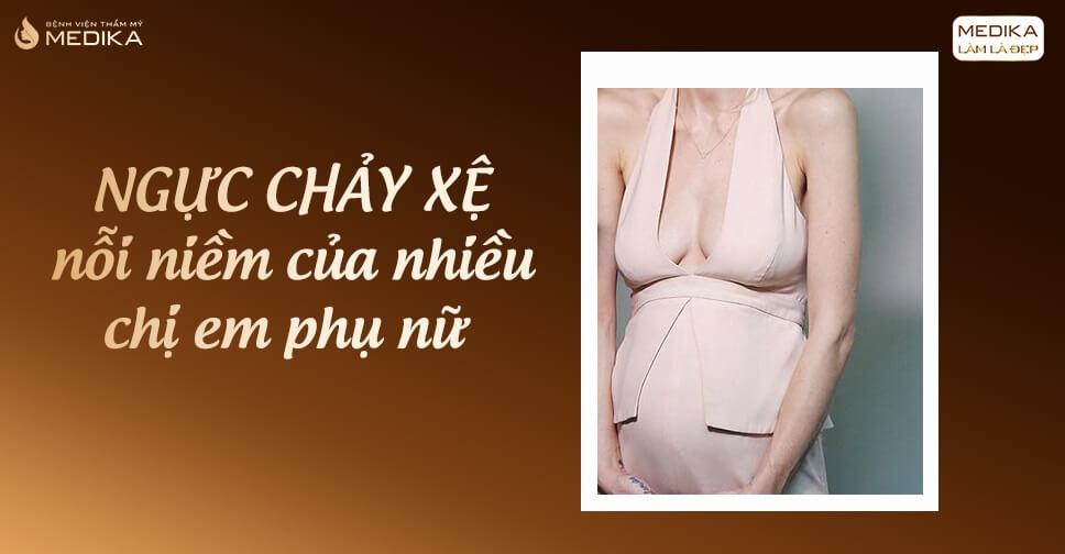Nâng ngực xệ dành riêng cho bà mẹ bỉm sữa và phụ nữ lớn tuổi - Nangngucxe.vn