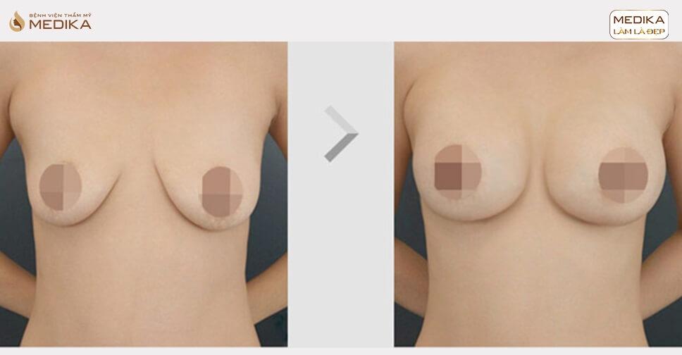 Nâng ngực xệ - Lấy lại thanh xuân cho nhiều chị em - Nangngucxe.vn
