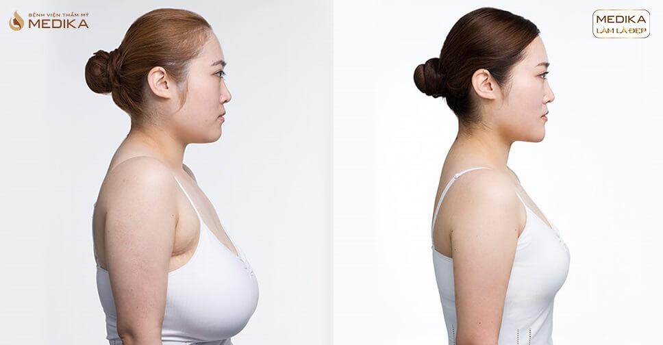 Nâng vòng 1 chảy xệ - Biến hóa cặp ngực hoàn hảo - Nangngucxe.vn