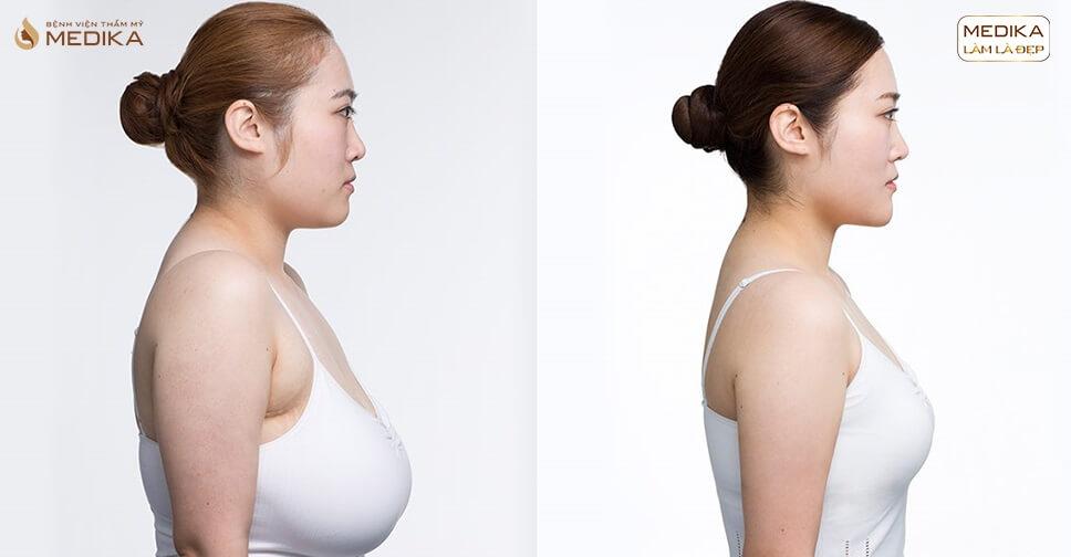 Nâng vòng 1 chảy xệ - Phương pháp cải tạo bầu ngực lão hóa - Nangngucxe.vn