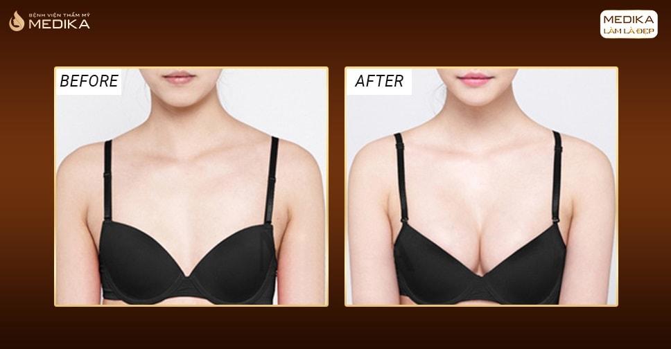 Đẹp an toàn cùng phương pháp phẫu thuật nâng ngực nội soi - Nangngucxe.vn