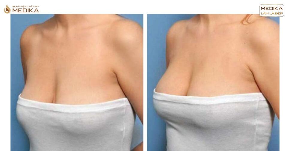 Nâng ngực chảy xệ không độn bằng biện pháp treo tuyến - Nangngucxe.vn