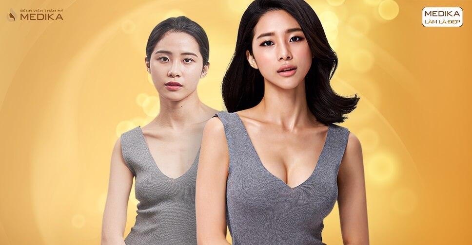 90 phút phẫu thuật nâng ngực đẹp trọn đời - Nangngucxe.vn