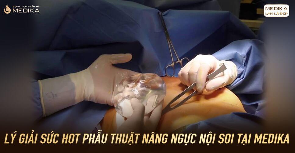 Lý giải sức hot của phẫu thuật nâng vòng 1 nội soi tại MEDIKA? - Nangngucxe.vn