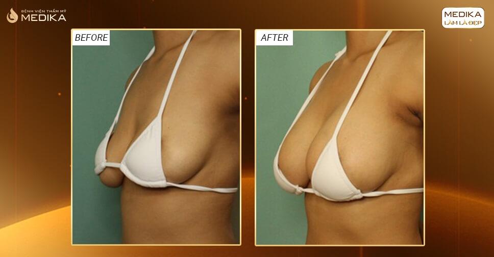 Nâng vòng 1 chảy xệ thực hiện khó nhưng kết quả nâng ngực thì? - Nangngucxe.vn