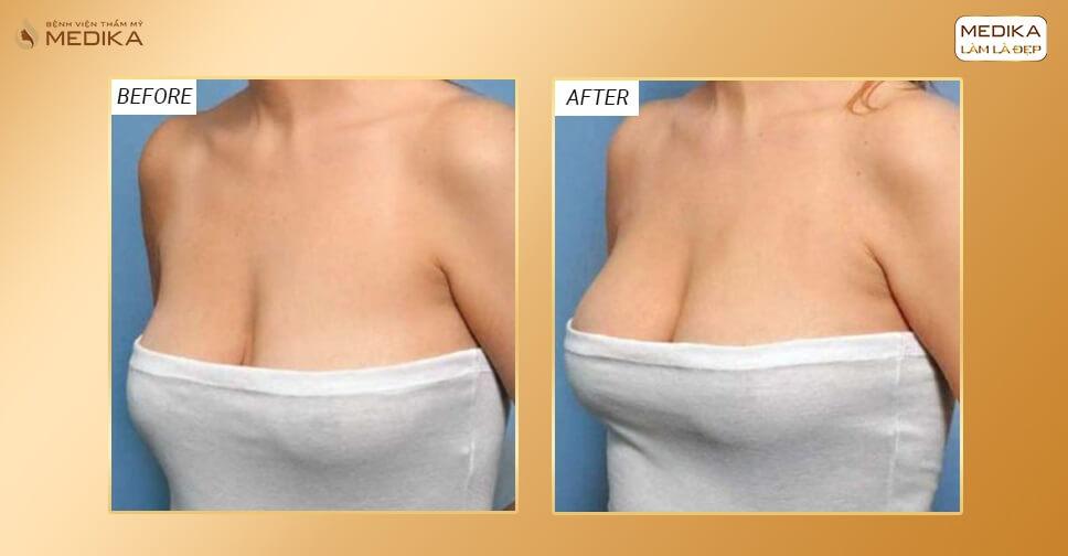 Đơn vị nào thực hiện nâng ngực xệ an toàn tại Sài Gòn? - Nangngucxe.vn