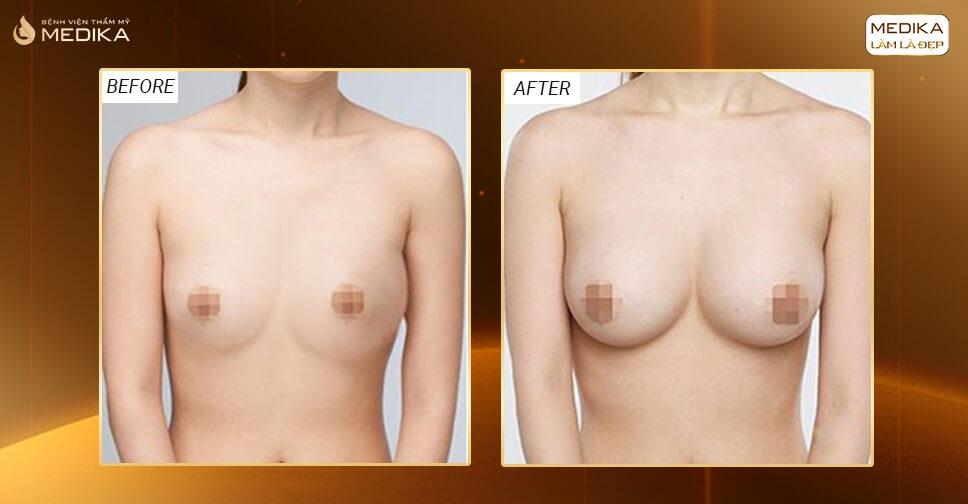 Lựa chọn sai dẫn tới phẫu thuật vòng 1 hỏng - Nangngucxe.vn