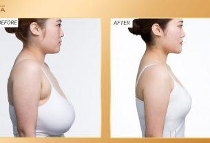 Nâng ngực chảy xệ có phải lựa chọn hoàn hảo cho mẹ bỉm sữa? - Nangngucxe.vn