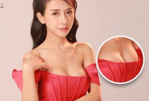 Nâng ngực nội soi sau dịch Covid 19 ưu đãi ngập tràn - Nangngucxe.vn