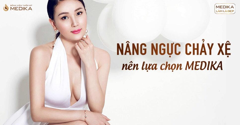 Phẫu thuật nâng ngực chảy xệ hình thức nội soi lựa chọn hoàn hảo - Nangngucxe.vn