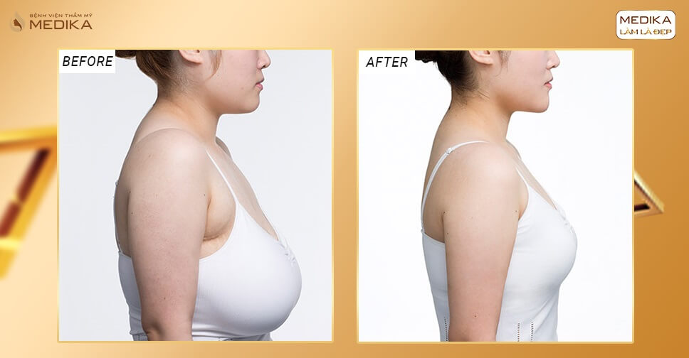 Thực hiện nâng ngực xệ mang đến sự tự tin - Nangngucxe.vn
