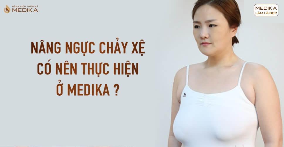 Có nên thực hiện nâng ngực chảy xệ tại MEDIKA? - Nangngucxe.vn
