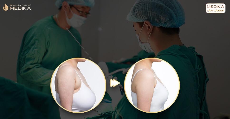 Nâng ngực chảy xệ có nguy hiểm không ở Nangngucxe.vn?