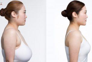 Nâng ngực chảy xệ mang lại hạnh phúc như thế nào? - Nangngucxe.vn
