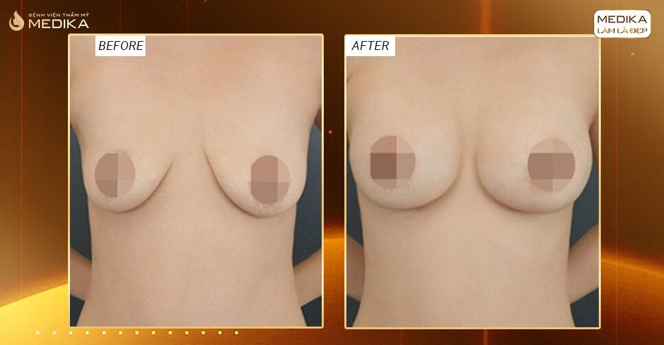 Nâng ngực chảy xệ thực hiện khoảng bao lâu ở Nangngucxe.vn?