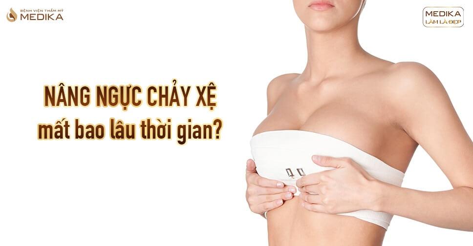 Nâng ngực chảy xệ thực hiện khoảng bao lâu tại Nangngucxe.vn?