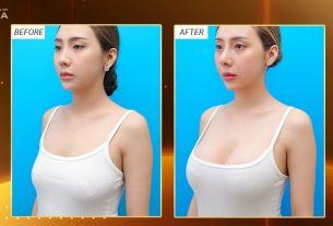 Nâng ngực nội soi giải pháp cho những cặp ngực ĐỒNG BẰNG tại Nangngucxe.vn