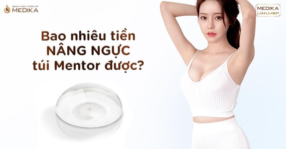 Bao nhiêu tiền nâng ngực túi Mentor được tại Nangngucxe.vn?