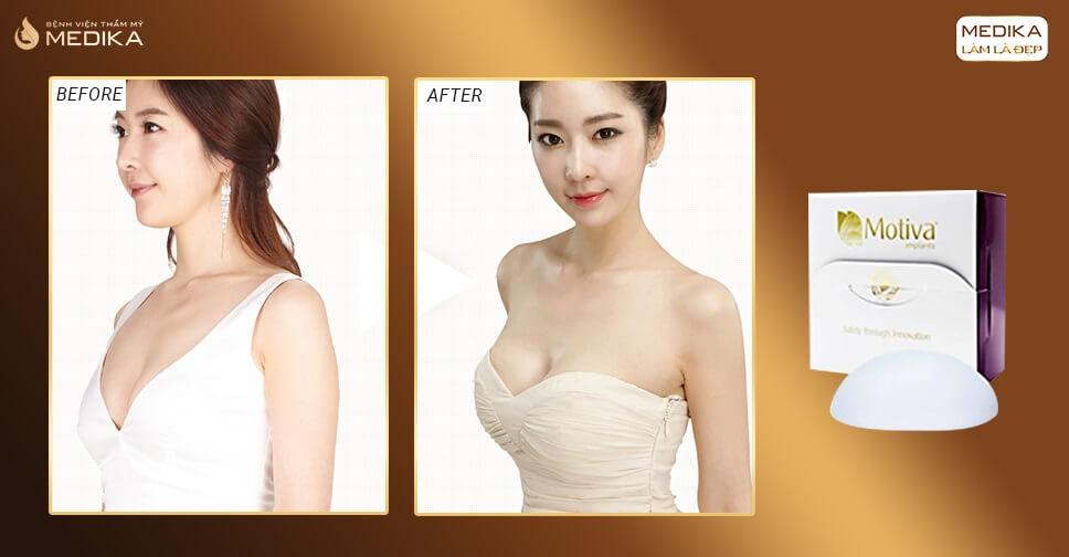 Túi Motiva dẫn đầu xu hướng túi nâng ngực tại Nangngucxe.vn