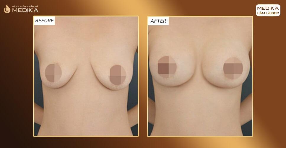 Nâng ngực xệ bao lâu có thể tắm được bởi Nangngucxe.vn?