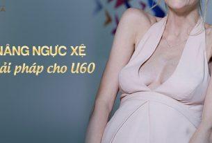 Nâng ngực xệ giải pháp cho phụ nữ U60 tại Nangngucxe.vn