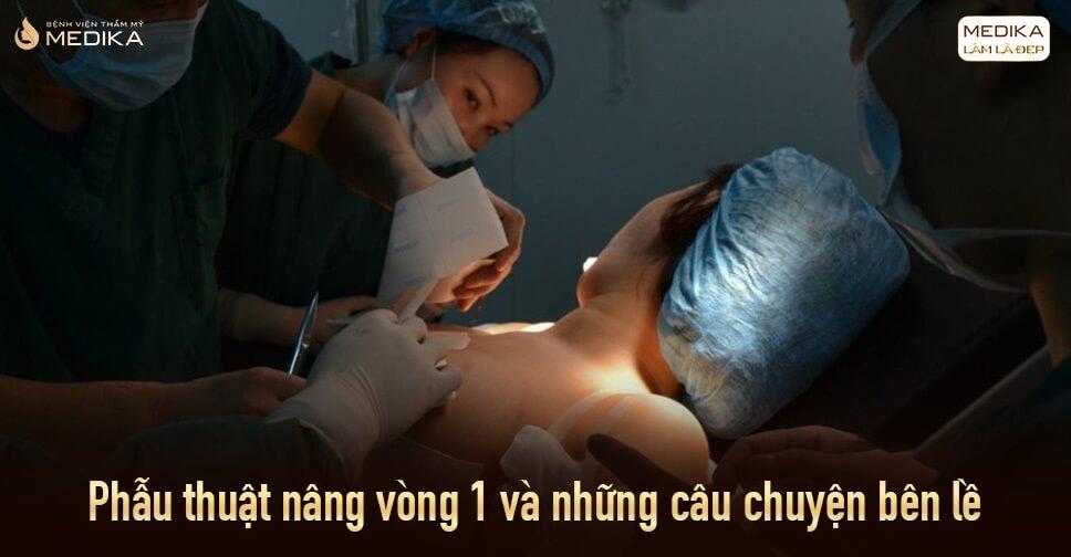 Phẫu thuật nâng vòng 1 và những câu chuyện bên lề từ Nangngucxe